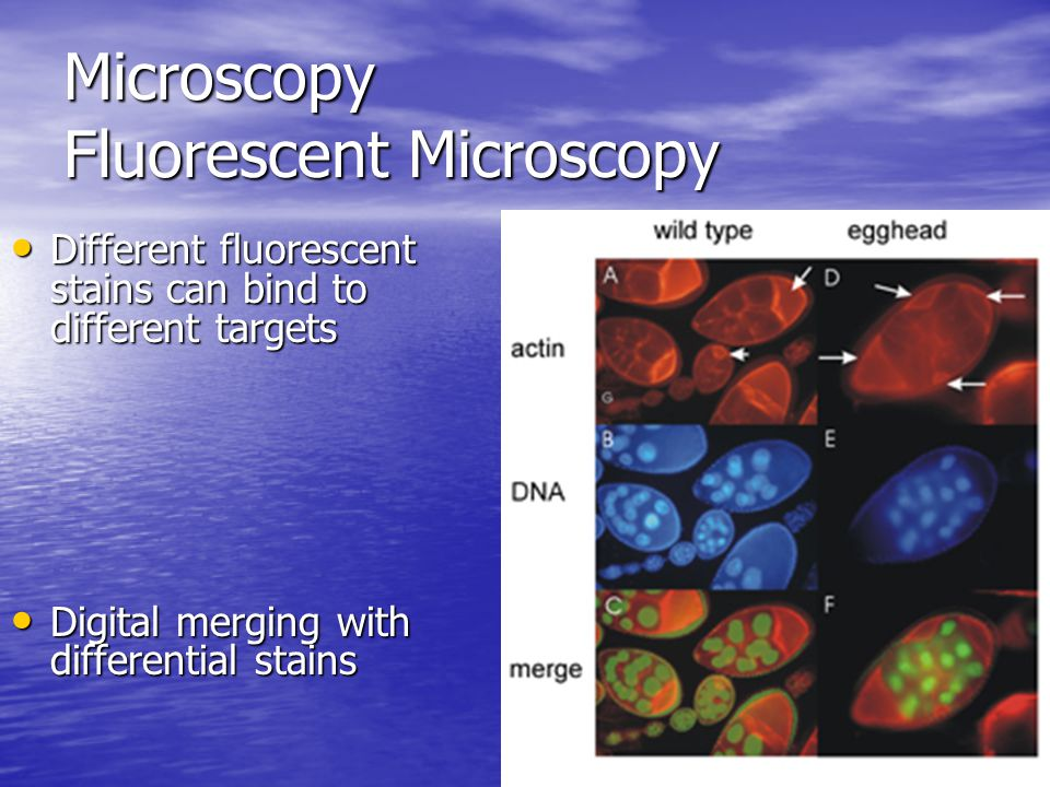 Microscopy Fluorescent Microscopy