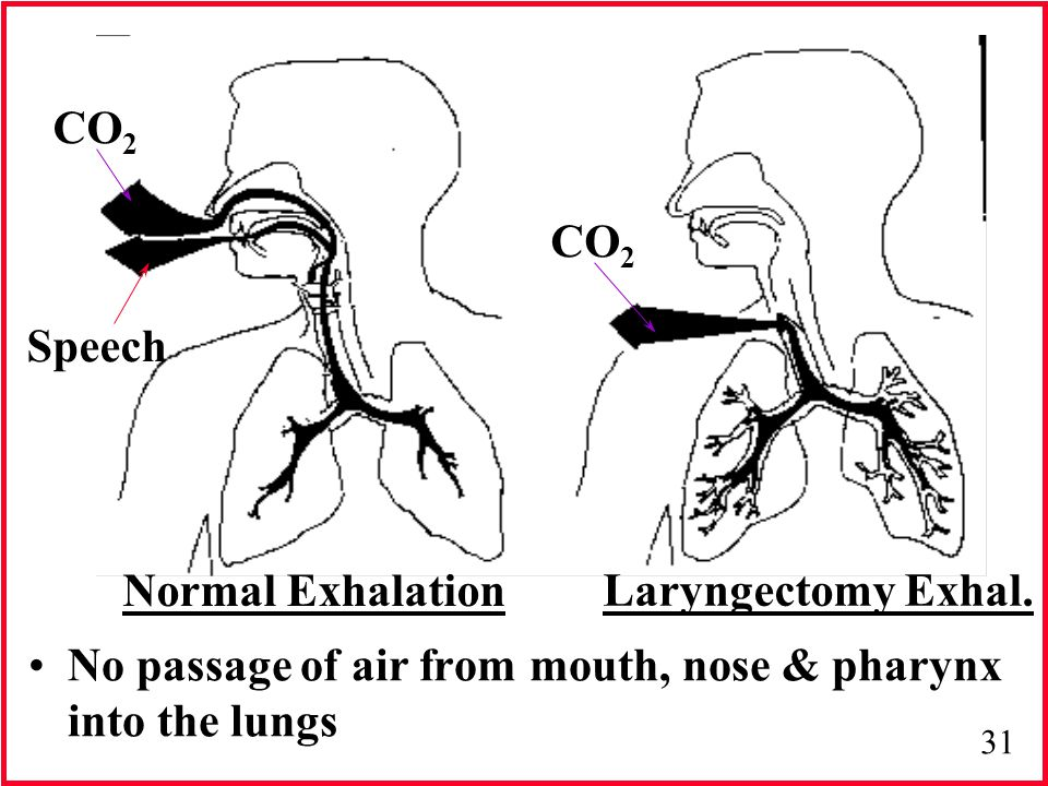 No passage of air from mouth, nose & pharynx into the lungs