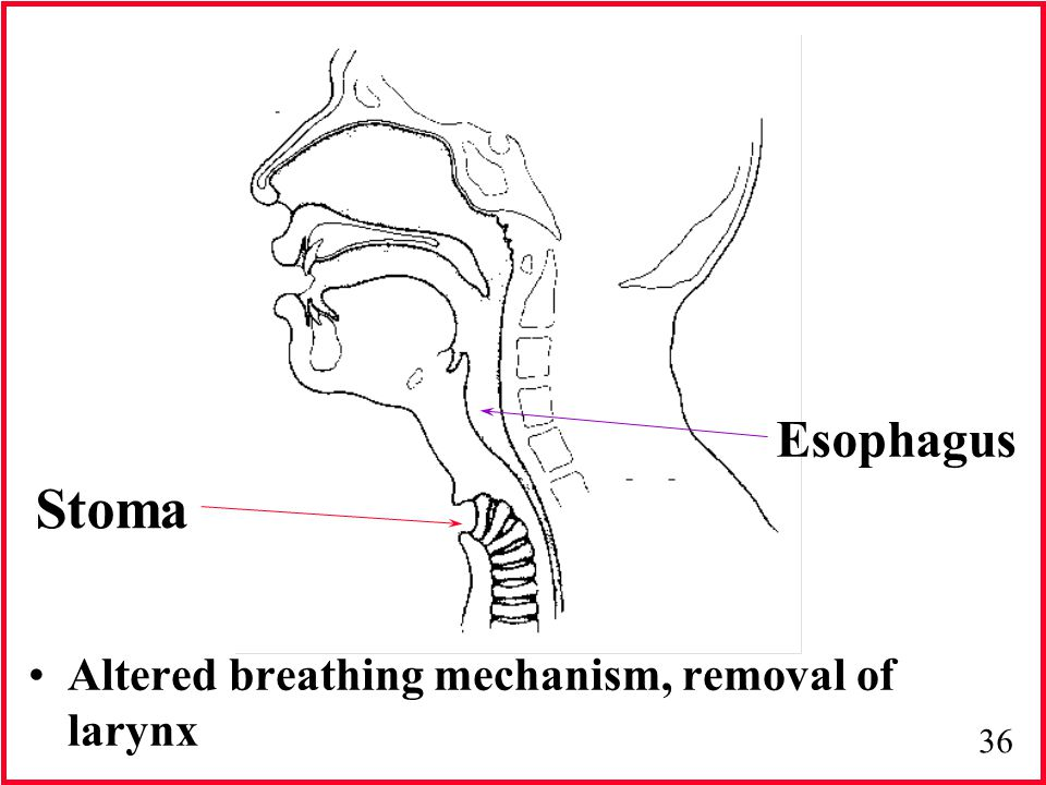 Esophagus Stoma Altered breathing mechanism, removal of larynx 11