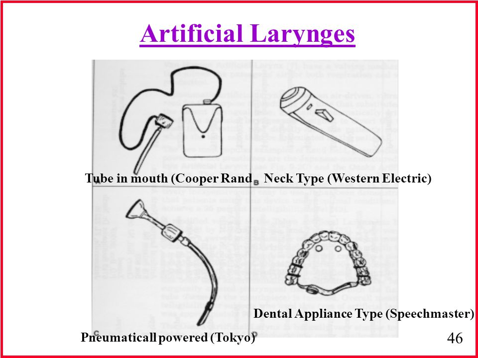 Artificial Larynges Tube in mouth (Cooper Rand