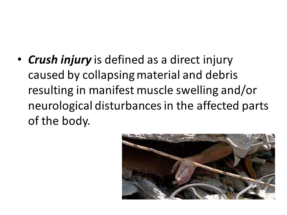 Crush injury is defined as a direct injury caused by collapsing material and debris resulting in manifest muscle swelling and/or neurological disturbances in the affected parts of the body.