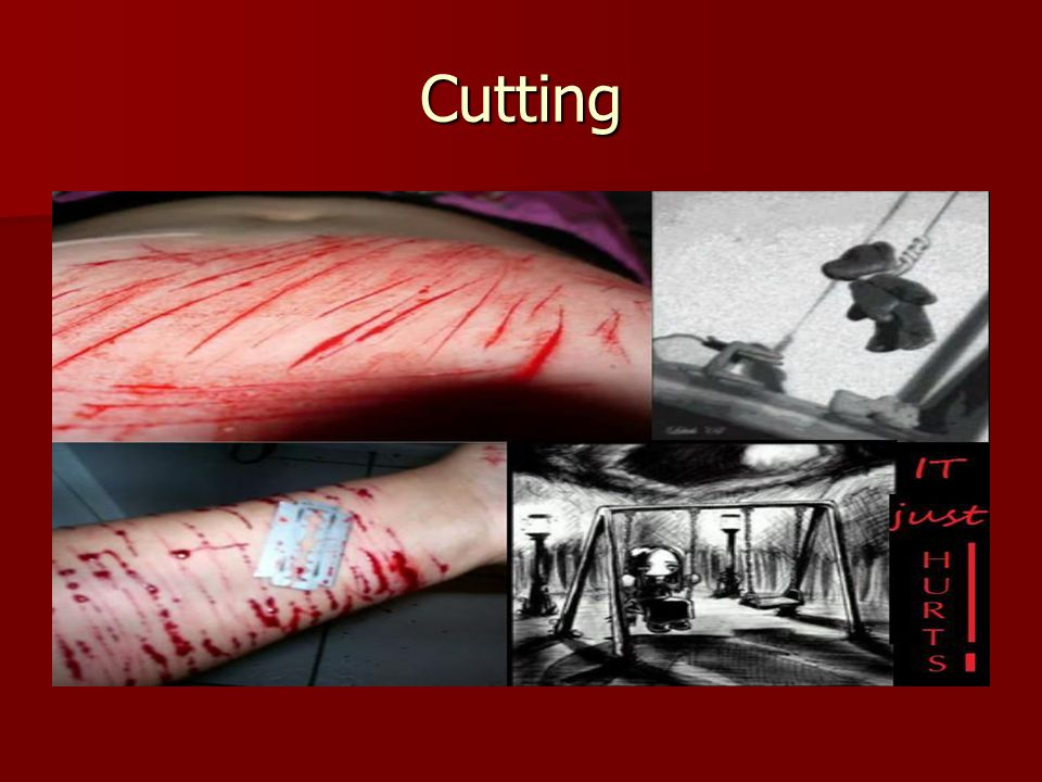 Cutting Many times associated with sexual abuse