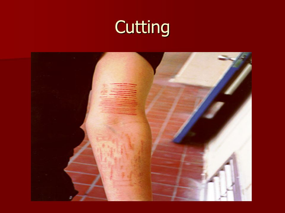 Cutting Cutters have explained the feeling of letting the pain out when discussing why they cut