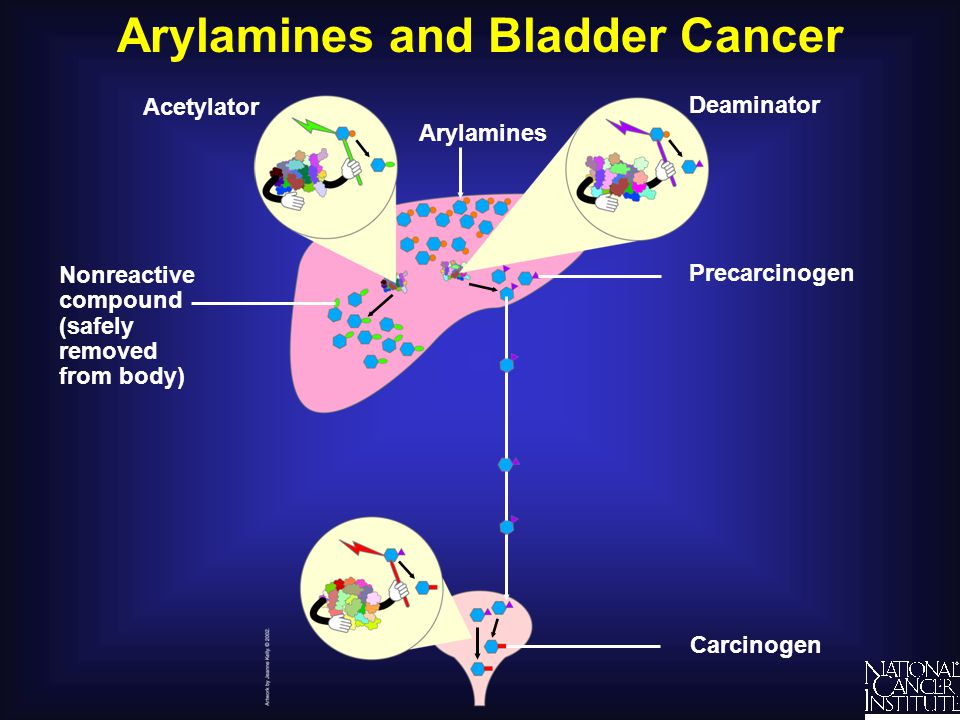 Arylamines and Bladder Cancer