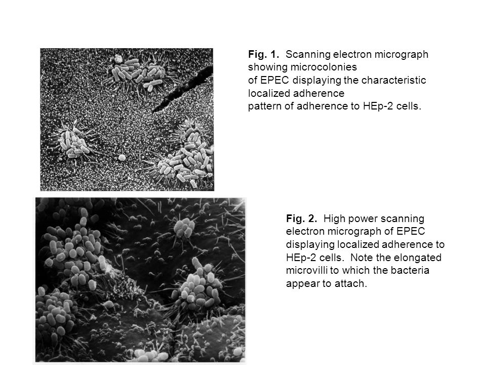 Fig. 1. Scanning electron micrograph showing microcolonies