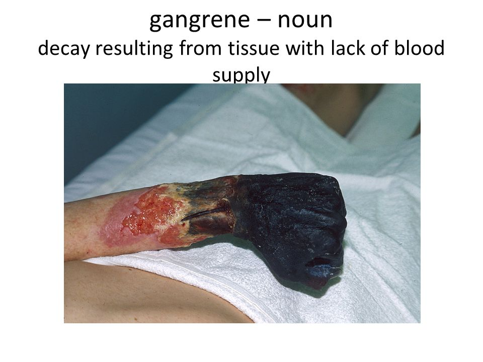 gangrene – noun decay resulting from tissue with lack of blood supply