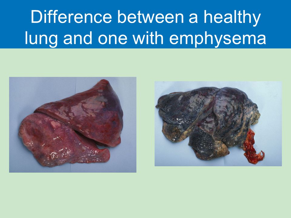 Difference between a healthy lung and one with emphysema