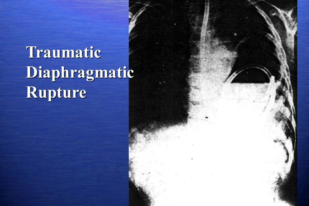 Traumatic Diaphragmatic Rupture