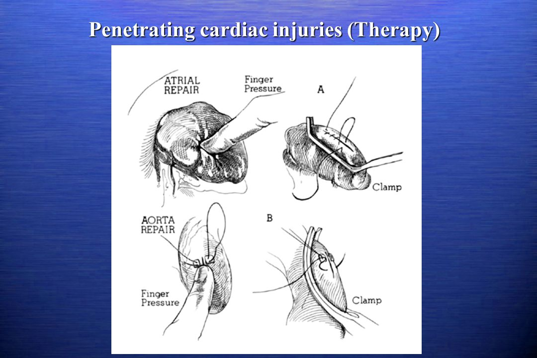 Penetrating cardiac injuries (Therapy)