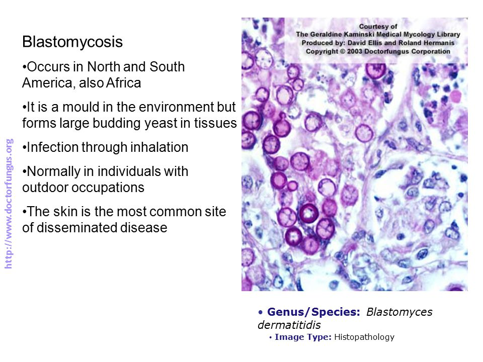 Blastomycosis Occurs in North and South America, also Africa