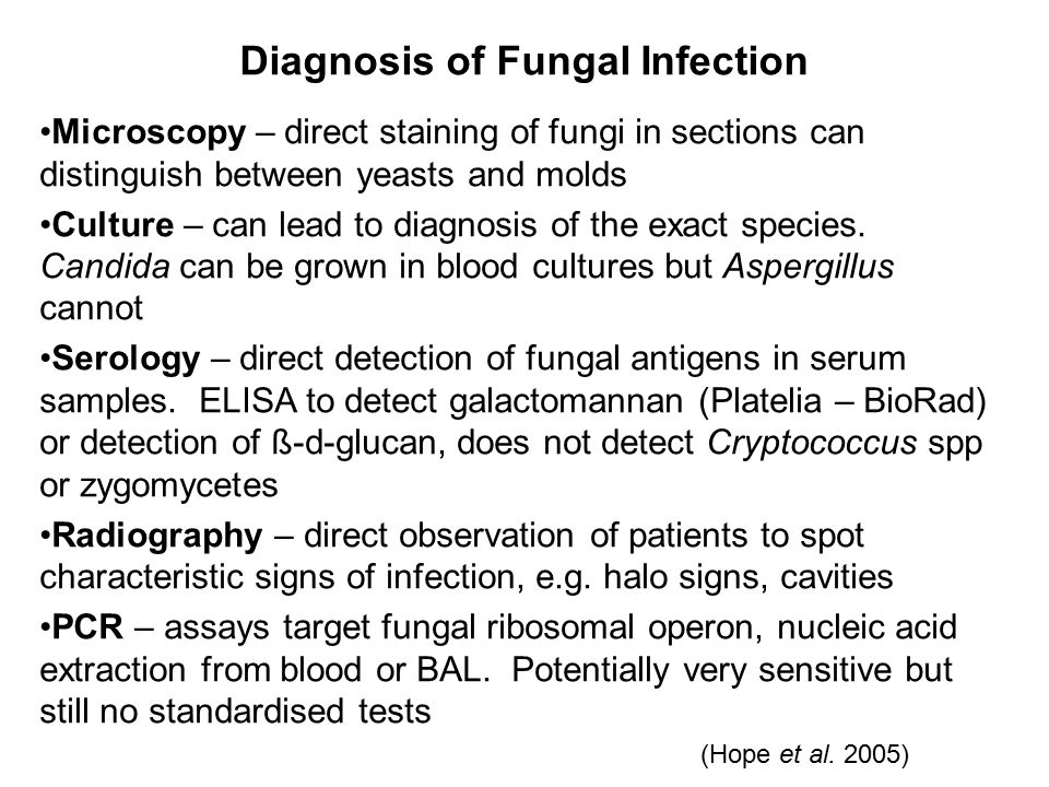Diagnosis of Fungal Infection