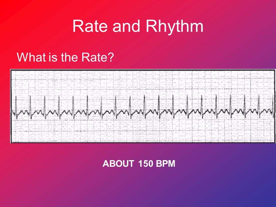 Rate and Rhythm What is the Rate ABOUT 150 BPM