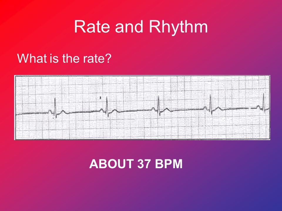 Rate and Rhythm What is the rate ABOUT 37 BPM