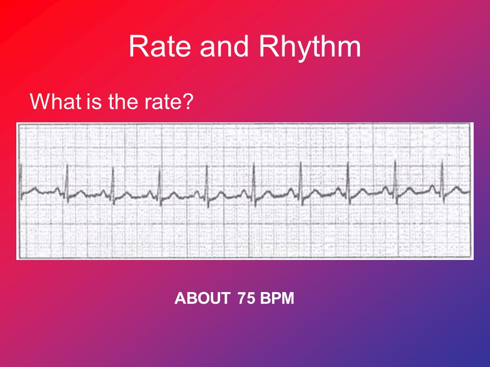 Rate and Rhythm What is the rate ABOUT 75 BPM