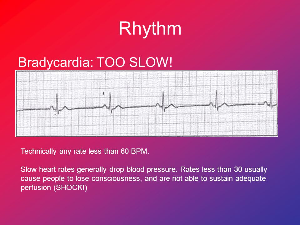 Rhythm Bradycardia: TOO SLOW! Technically any rate less than 60 BPM.
