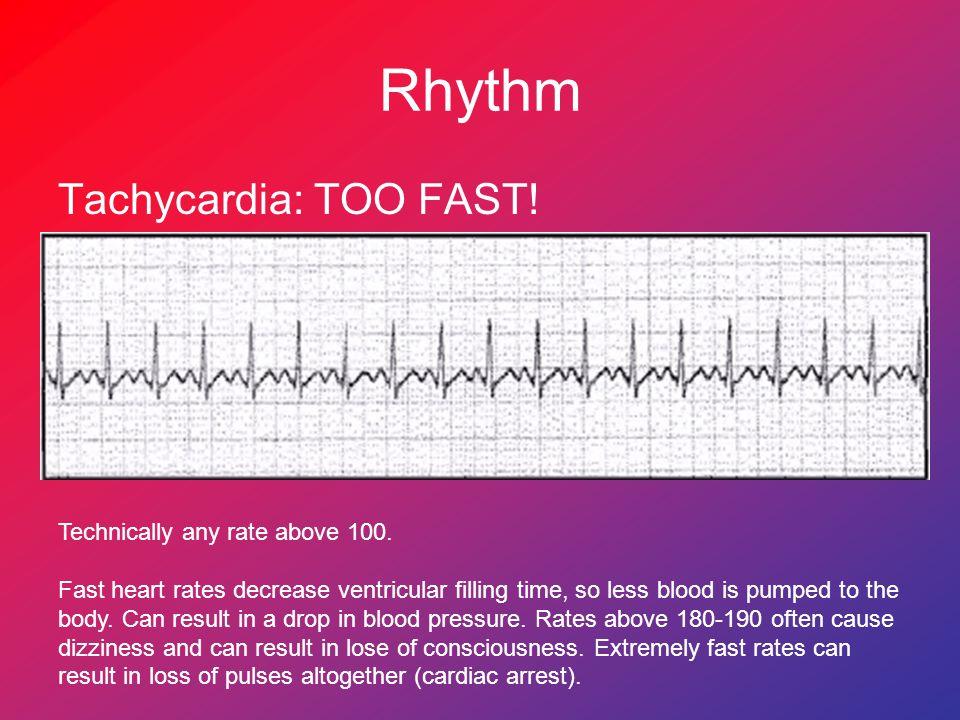 Rhythm Tachycardia: TOO FAST! Technically any rate above 100.