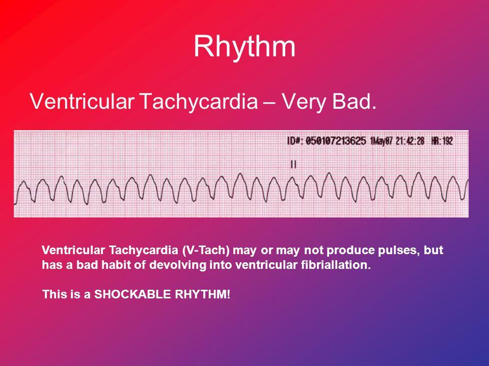 Rhythm Ventricular Tachycardia – Very Bad.