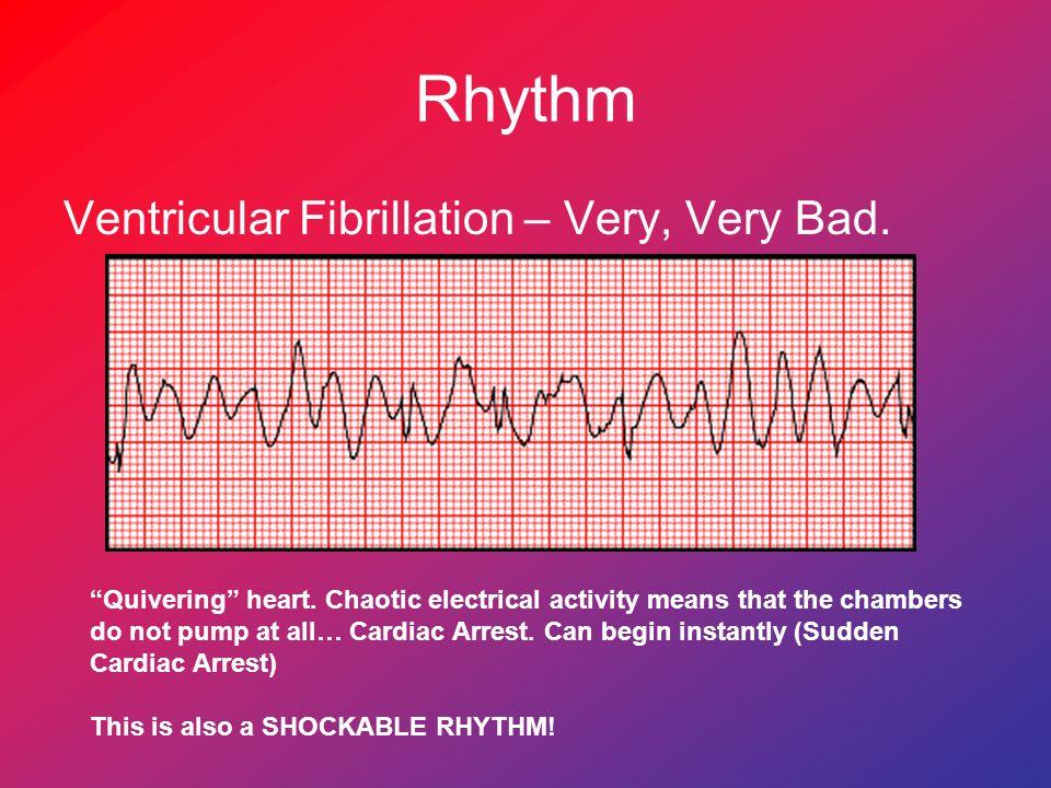 Rhythm Ventricular Fibrillation – Very, Very Bad.