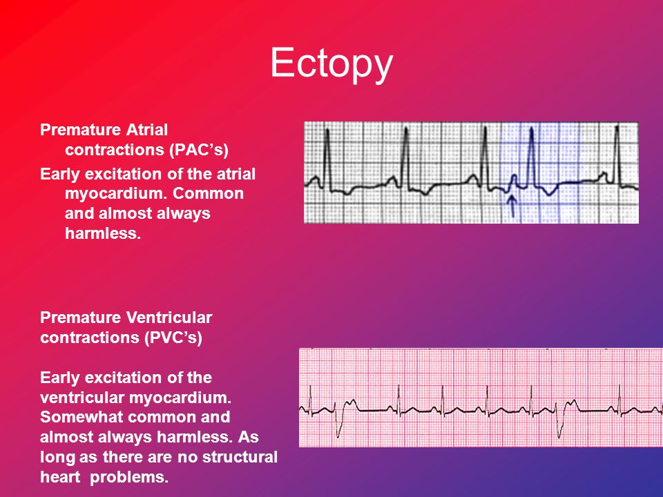 Ectopy Premature Atrial contractions (PAC's) Early excitation of the atrial myocardium. Common and almost always harmless.