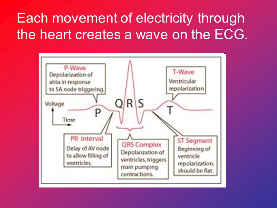 Each movement of electricity through the heart creates a wave on the ECG.