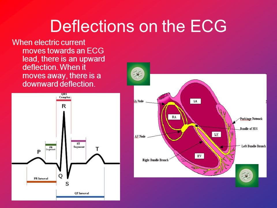 Deflections on the ECG