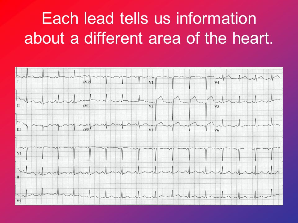Each lead tells us information about a different area of the heart.
