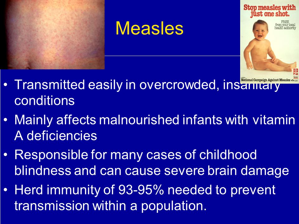 Measles Transmitted easily in overcrowded, insanitary conditions