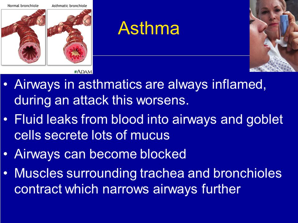 Asthma Airways in asthmatics are always inflamed, during an attack this worsens.