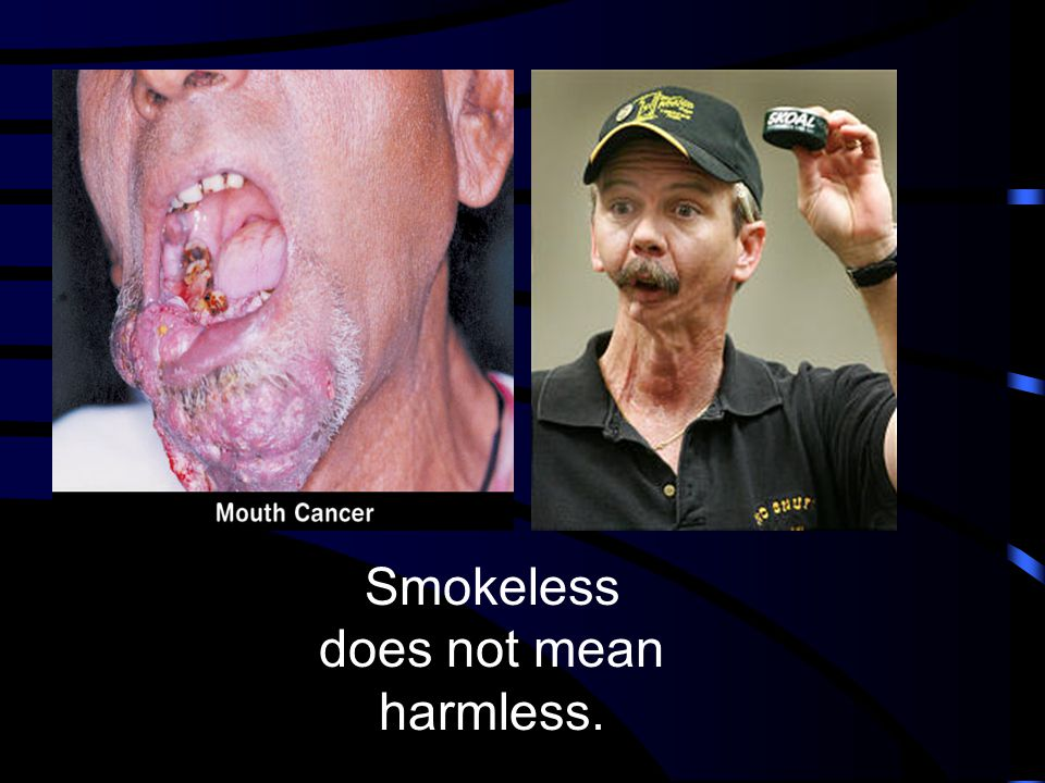 Smokeless does not mean harmless.