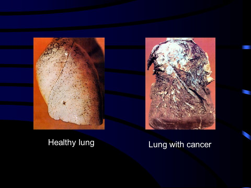 Healthy lung Lung with cancer
