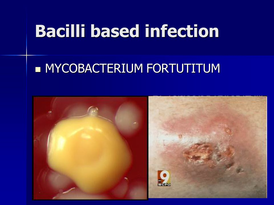 Bacilli based infection