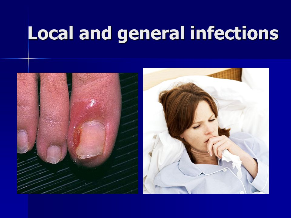Local and general infections