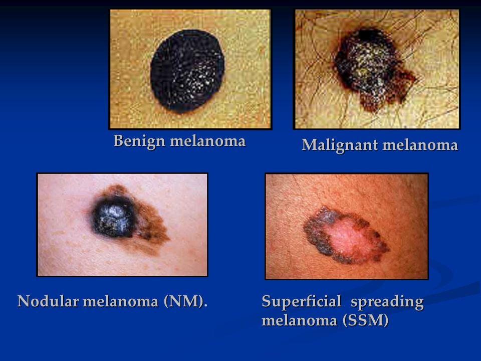 Benign melanoma Malignant melanoma Nodular melanoma (NM). Superficial spreading melanoma (SSM)