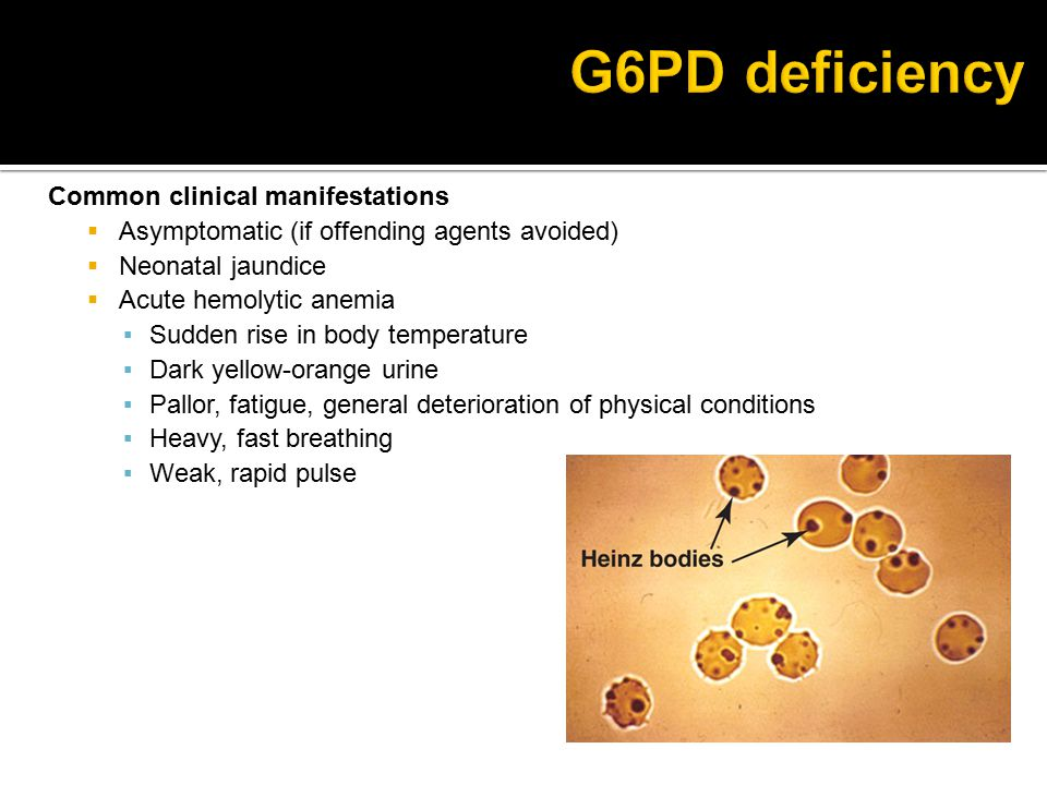 G6PD deficiency Common clinical manifestations