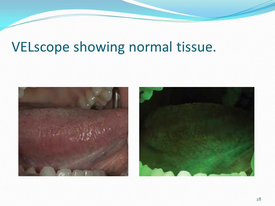 VELscope showing normal tissue.