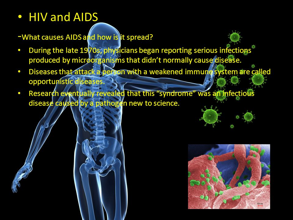 -What causes AIDS and how is it spread