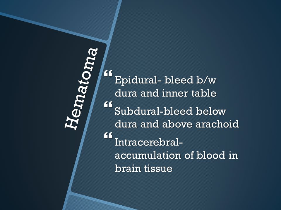 Hematoma Epidural- bleed b/w dura and inner table