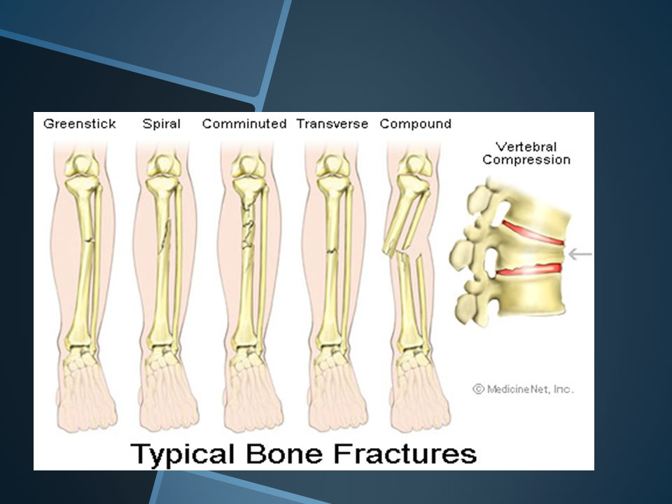 Specific fractures