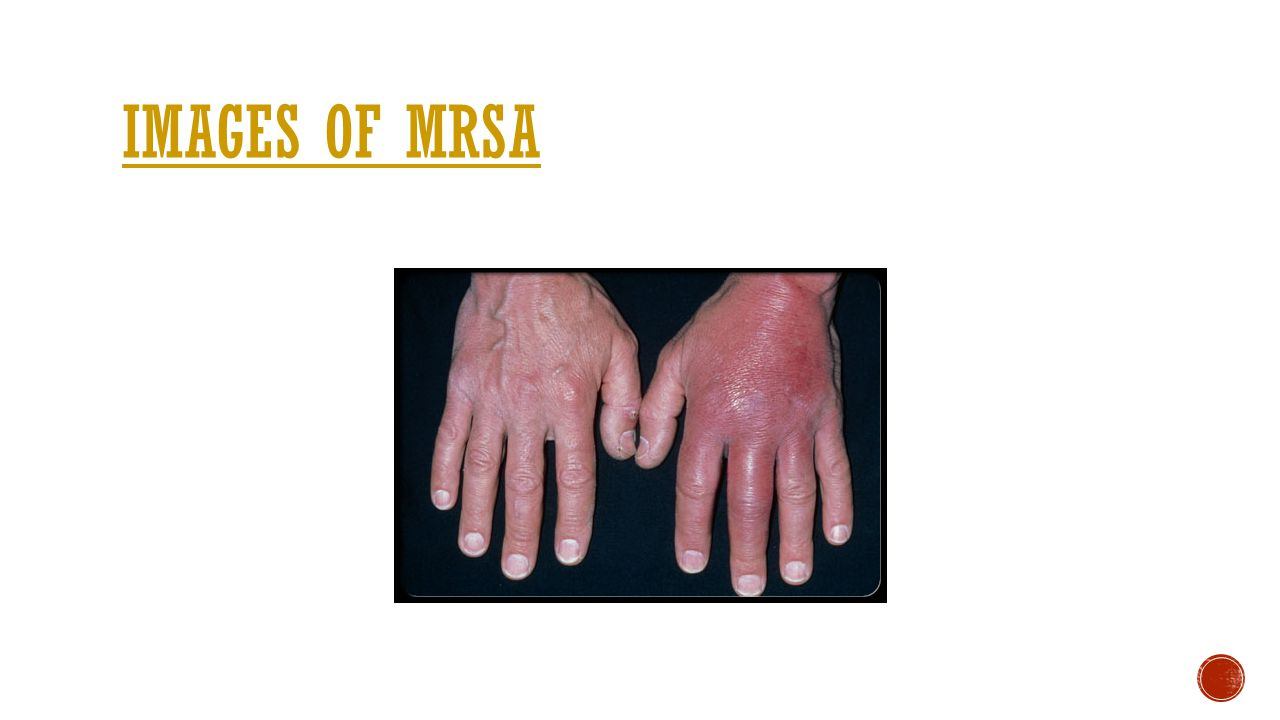 Images of mrsa