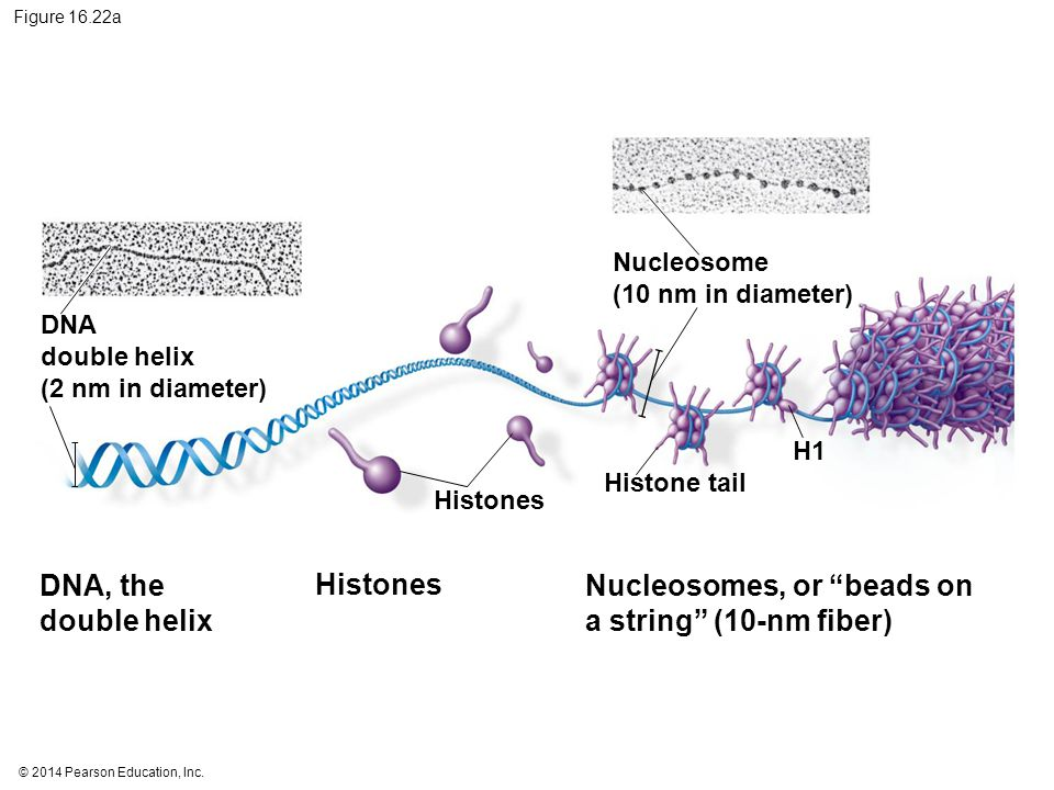 Nucleosomes, or beads on a string (10-nm fiber)
