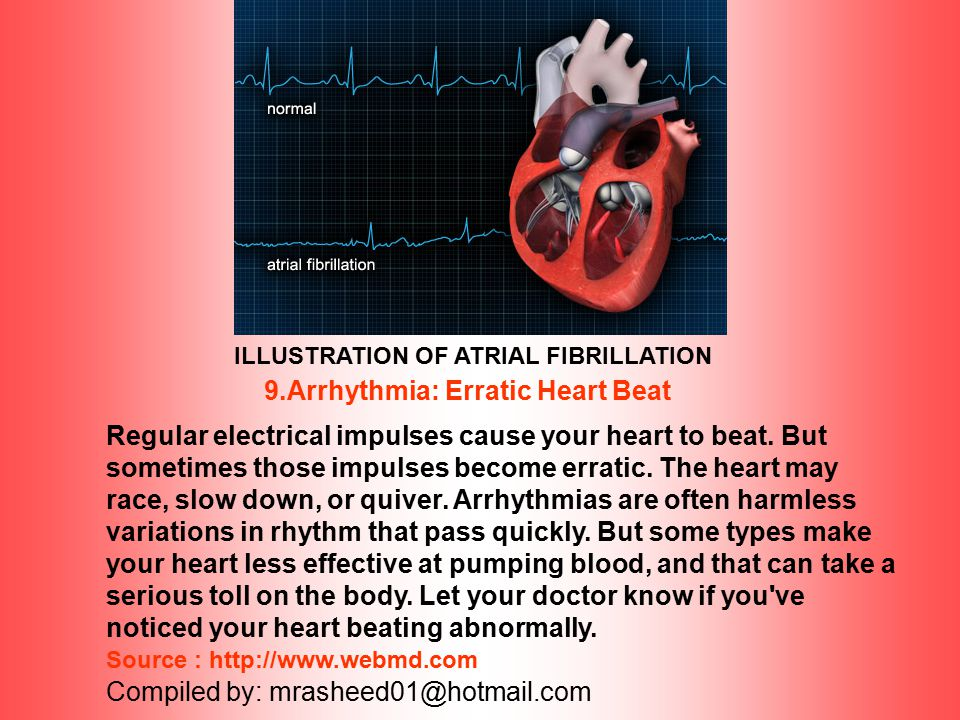 9.Arrhythmia: Erratic Heart Beat