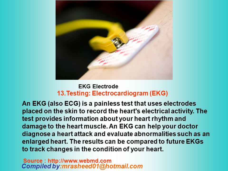 13.Testing: Electrocardiogram (EKG)