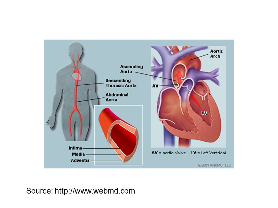 Heart disease heart attack and source ppt video online download 2 source httpwebmd ccuart Images