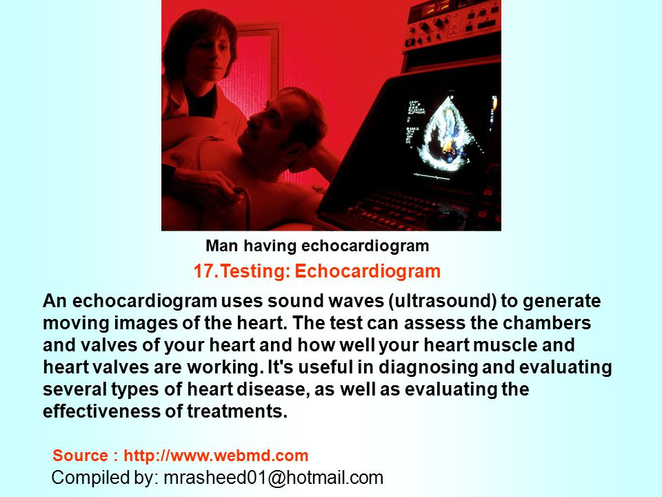 17.Testing: Echocardiogram