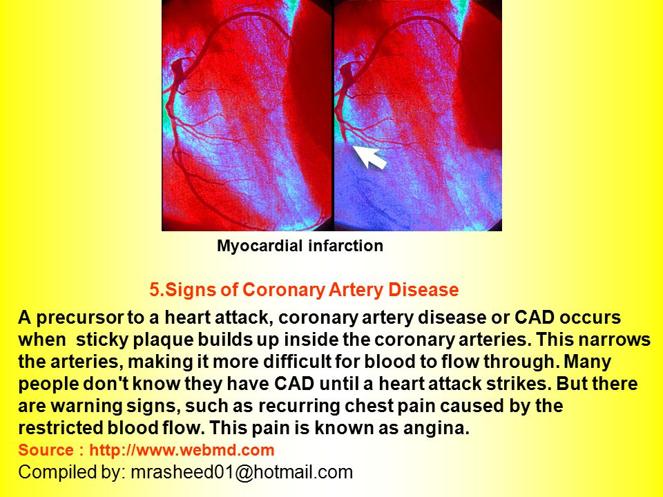 5.Signs of Coronary Artery Disease