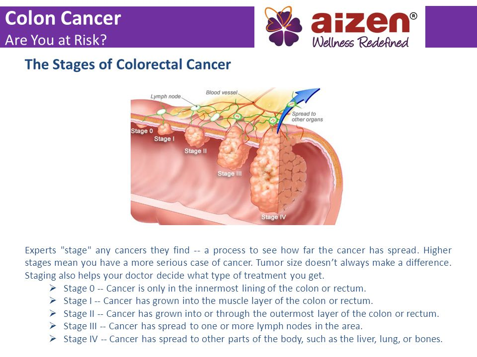 Colon Cancer Are You at Risk The Stages of Colorectal Cancer