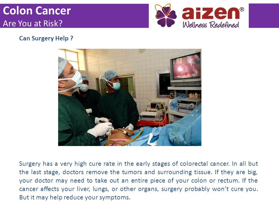 Colon Cancer Are You at Risk Can Surgery Help