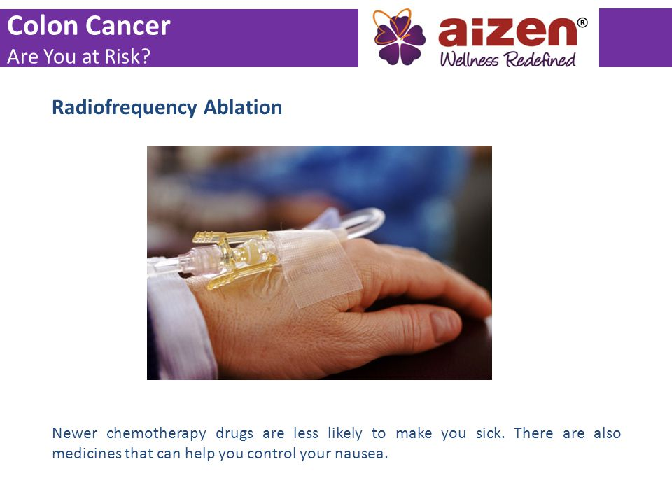 Colon Cancer Are You at Risk Radiofrequency Ablation