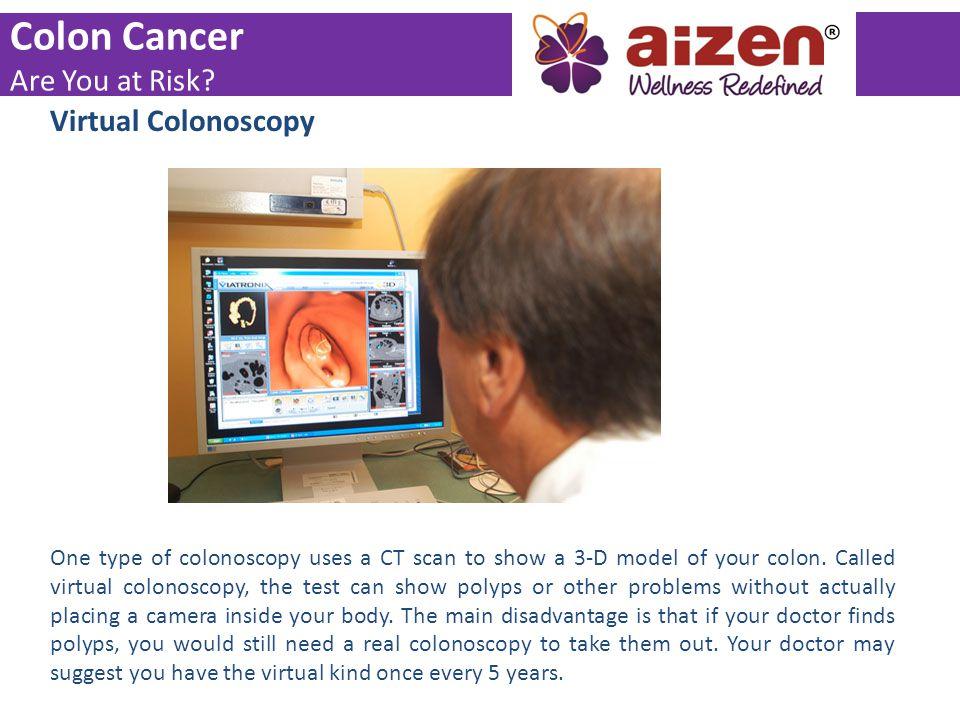 Colon Cancer Are You at Risk Virtual Colonoscopy