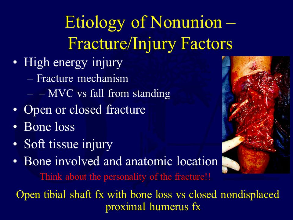 Etiology of Nonunion – Fracture/Injury Factors